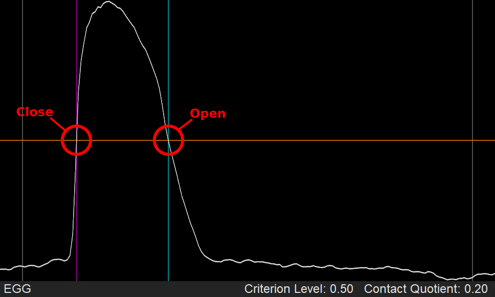 Using Criterion Level at 50% for estimating glottal contact period